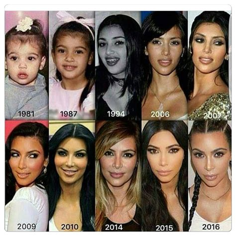 Pin by Antonette on Plastic surgery & body enhancements ...