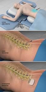Spinal Cord Stimulation Show Low Az