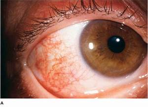 Image Gallery Simple Episcleritis