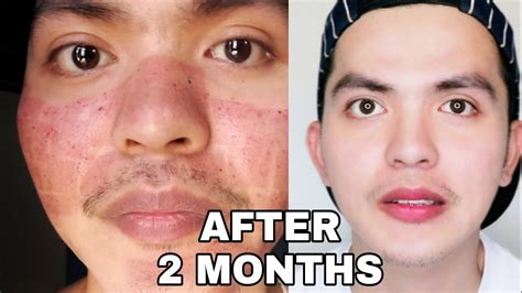 MY FACE After Fractional CO2 Laser Treatment + Q&A - YouTube