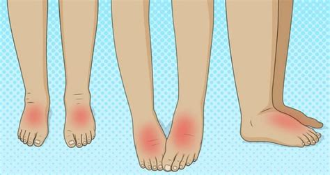 Medical Conditions That Could Be The Reason Why Your Feet