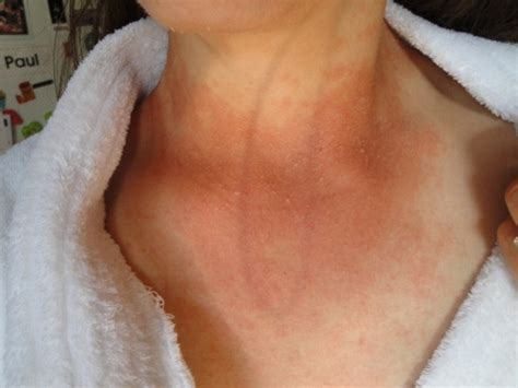 ketosis skin rash   ketogenic diet