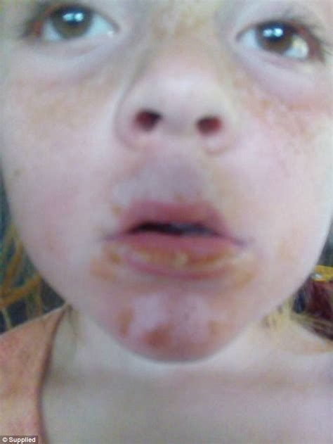 Banana Boat Sunscreen Blisters by Claims Baby Covered In Blisters After Using Banana