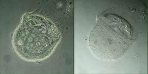 Microscope Vorticella Slide