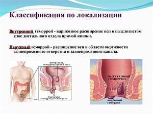 Геморрой трещина кровит что делать