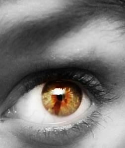sectoral heterochromia. | Heterochromia | Pinterest | Eyes