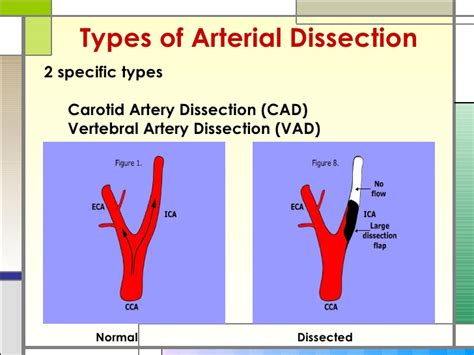Arterial Dissection and Stroke: A Veiled Risk and Case Example