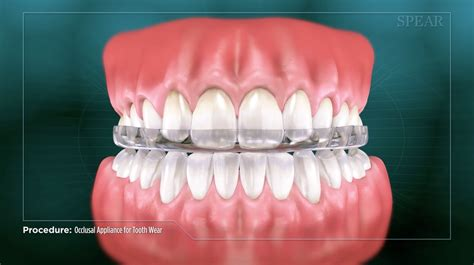 occlusal appliance  tooth wear video north delta dental