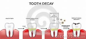 Tooth Caries And Cavity Stock Vector - Image: 60470307