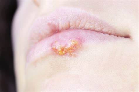 What Does Herpes Look Like In Stages?