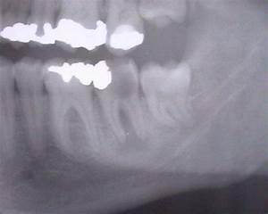 Symptome Dent De Sagesse : dent de sagesse wikip dia ~ Maxctalentgroup.com Avis de Voitures