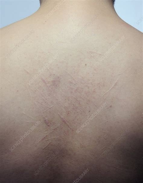 Scars from self harm on the back - Stock Image - C011/7570 ...