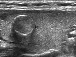 Thyroid Ultrasound Anatomy - Human Anatomy Diagram