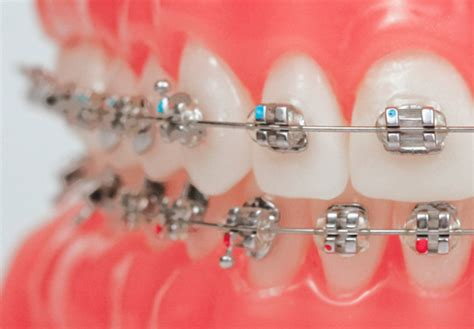 This plan may include braces, as well as other types of dental appliances, such as space maintainers and retainers. Coverage for Braces   Ortodoncia
