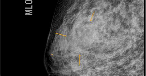 Phyllode Tumour Of The Breast