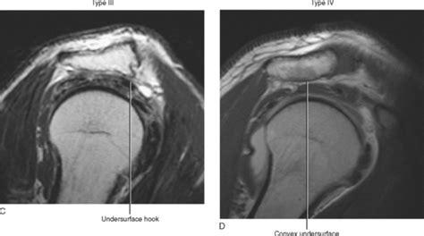 IMAGING OF THE SHOULDER | Radiology Key