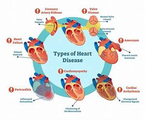 Heart Disease Explained U2014the Many Risk Factors  Causes  And