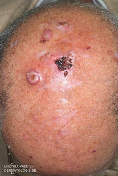 merkelzellkarzinom  ist hautkrebs