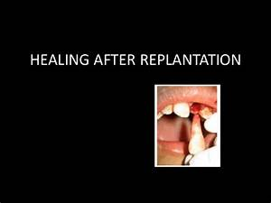 Wound Healing Of Oral Lesions