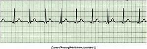 Flashcards - EKGs - | StudyBlue