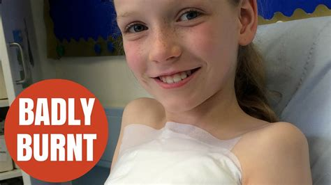 Nineyearold Girl Suffers Horrific Burns Filling Up Hot Water Bottle Youtube