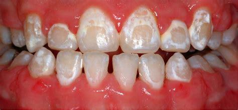 Lingual Orthodontics | Lingual Orthodontic Braces Ireland