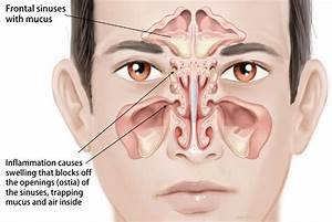 How To Relieve Sinus Pressure