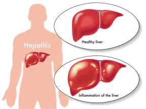... Among Viral Variants Helps Hepatitis C Survive Immune System Attacks Hepatitis