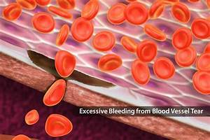 Blood Disorders  Types  Symptoms  And Treatments