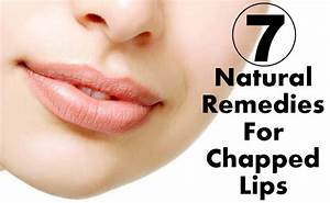 7 Natural Remedies For Chapped Lips Diy Health Remedy