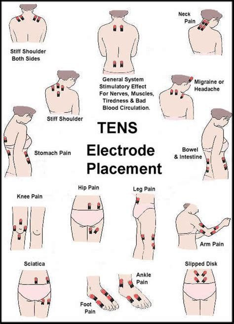 tens unit electrode placement guide prohealthcareproducts