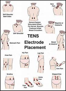 Tens Unit Electrode Placement Guide