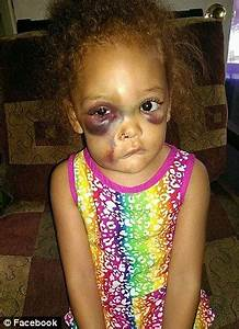 Mississippi girl suffered facial injuries blaming ...
