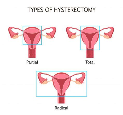 What Happens to Your Body After a Hysterectomy?: John ...