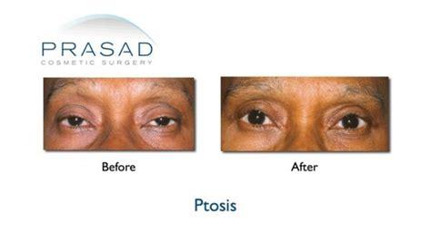 ptosis surgery     prasad cosmetic