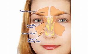 Blow The Horns  Acupuncture Eases Sinus Pain