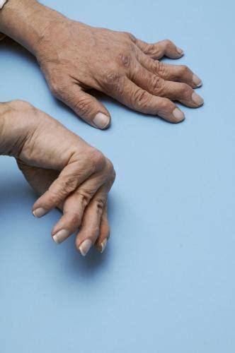 rheumatoid arthritis ra musculoskeletal  connective