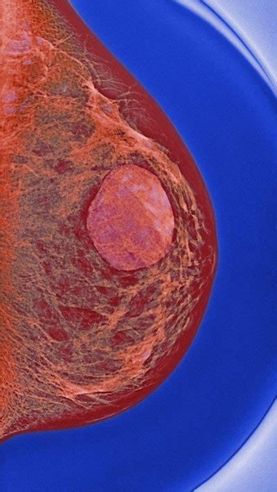 biopsy  breast cysts  clinical advisor