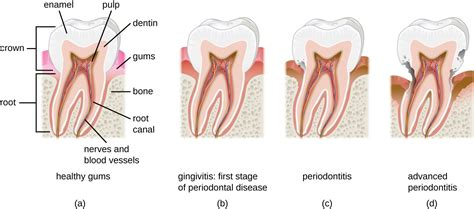 Tooth Bone Diagram by Microbial Diseases Of The And Cavity Microbiology