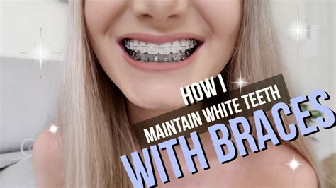 what color makes white what color braces make your teeth look whiter จ ดฟ น จ