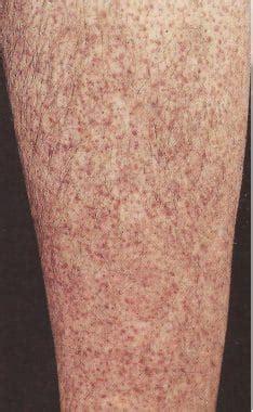 blaue flecke  den beinen leukaemie ploetzlich haematome