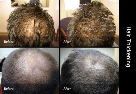How To Hair by How To Thicken Hair Thickener Thin Invisihair Co Uk