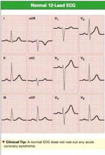 Normal 12 Lead ECG