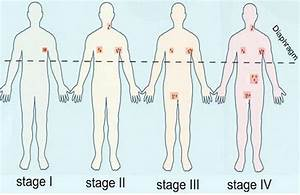 About Lymphoma  What Is Lymphoma