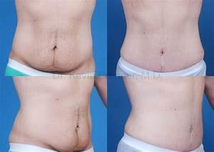 Отзывы о средстве для похудения гербалайф