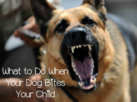 dog attack      dog bites  child