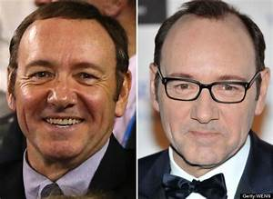 Kevin Spacey Hair Transplant? Actor Sports Thicker Thatch ...