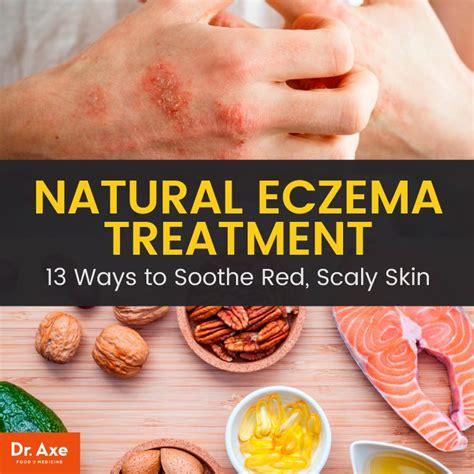 Best Treatment For Eczema 13 Best Eczema Treatment Options Dr Axe