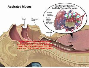 Amicus Illustration Of Amicus Medical Aspirated Mucus