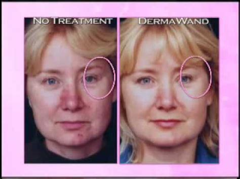 Derma Wand  Before And After Comparison  Youtube